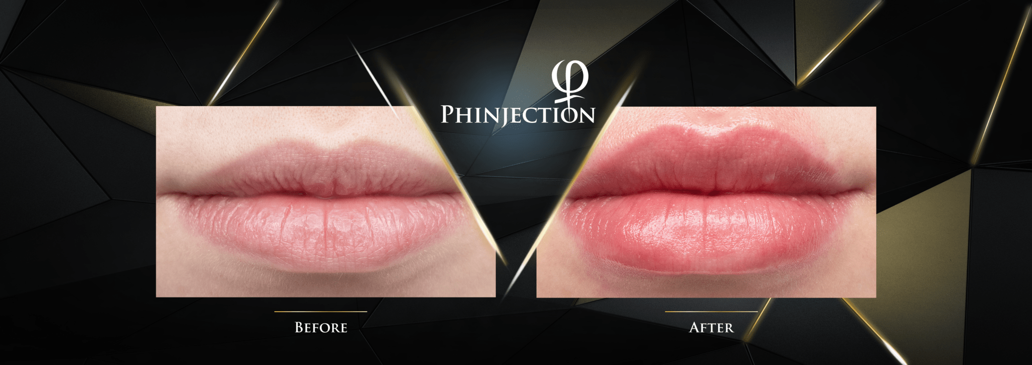 PHINJECTION-Before-After